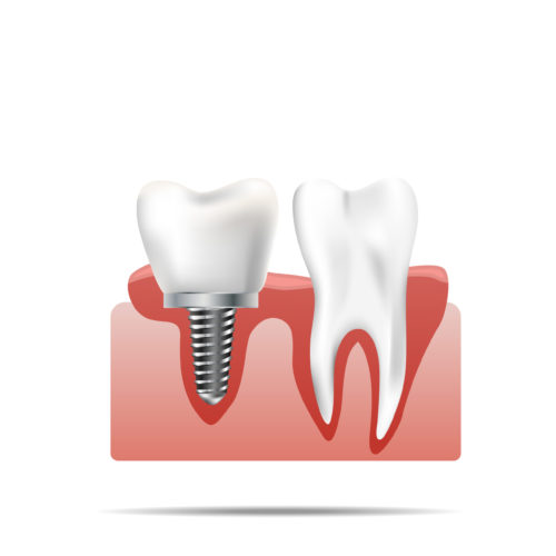 —Pngtree—healthy teeth and dental implant._4341510